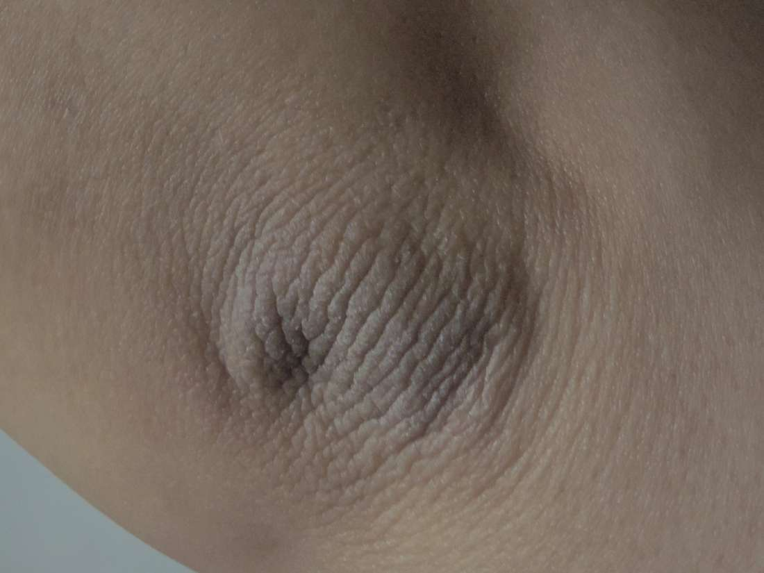 Acanthosis nigricans: Causes, symptoms, treatment, and pictures