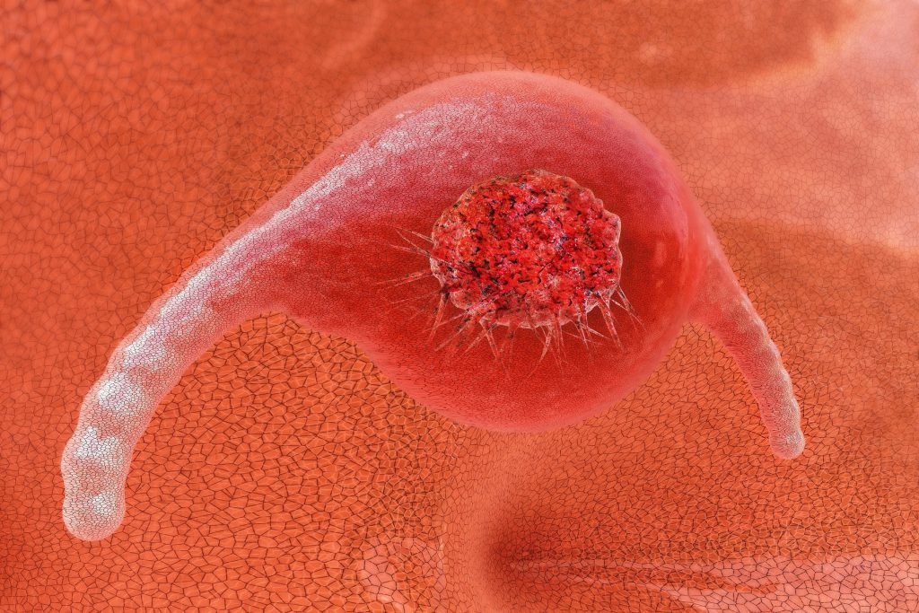 New method of diagnosis of cancer noted for the first time with one hundred percent accuracy