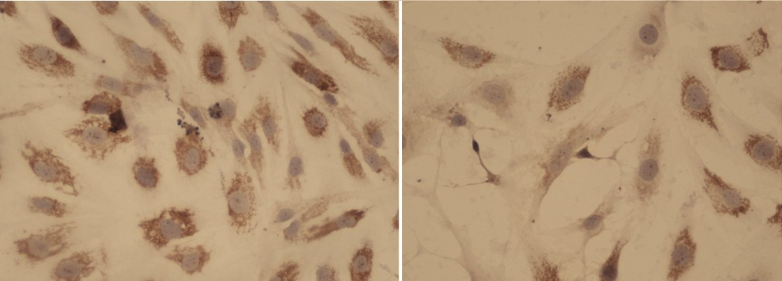Researchers find a potential new combination therapy against a rare disease