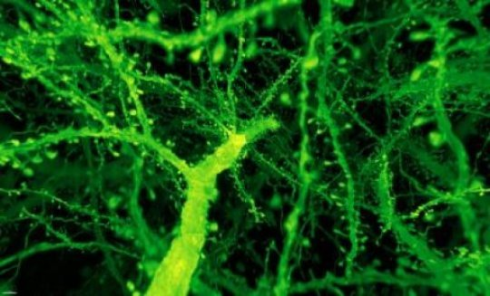 How to rapidly image entire brains at nanoscale resolution