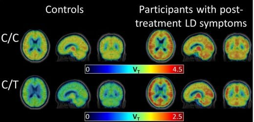 New scan technique reveals brain inflammation associated with post-treatment Lyme disease syndrome