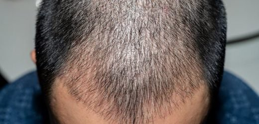 Businessman, 43, dies after undergoing hair transplant in India