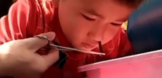 Gruesome footage shows a LEECH being removed from a boy's nose