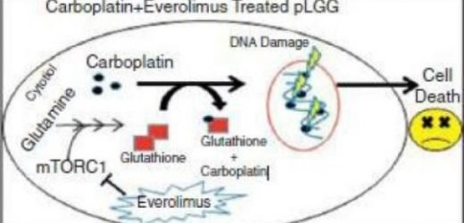 New drug combination shows promise for common pediatric brain tumor: Everolimus, carboplatin together slow low-grade glioma tumor growth, reduce tumor size