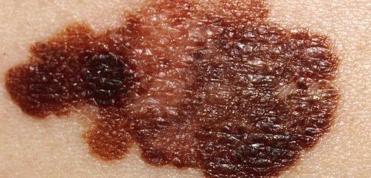 New studies aim to improve melanoma diagnosis