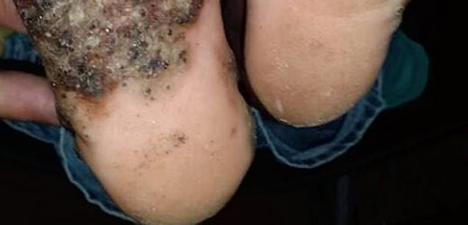 Girl, 10, catches gruesome infection on the soles of her feet