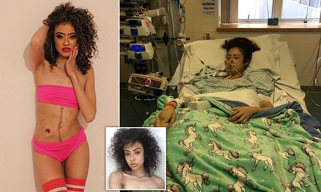 Model 'was left BLIND' after her battle with Crohn's disease