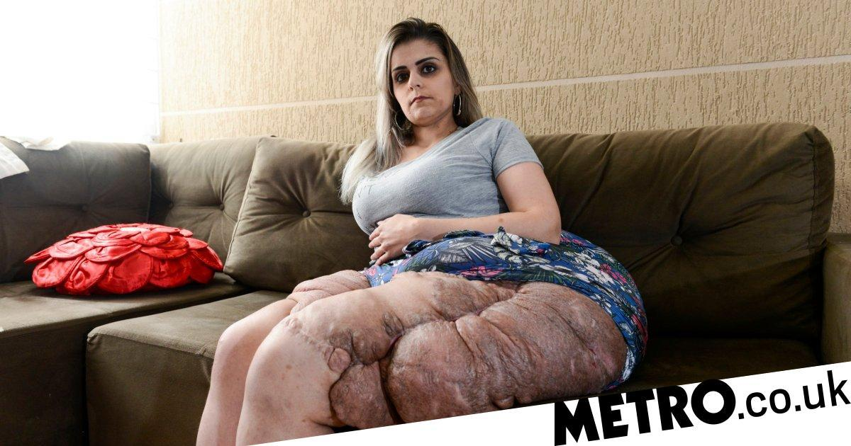 Woman with large tumours on her leg that weigh 4 kg says she won't cover them up
