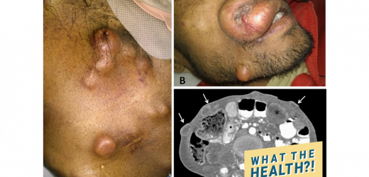 This Man Died After Developing Huge Lesions on His Skin From Rectal Cancer
