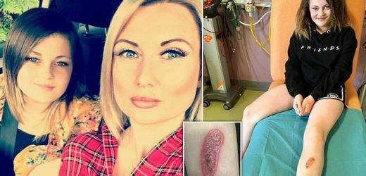 Girl, 11, left with third degree burns when she spilt nail glue