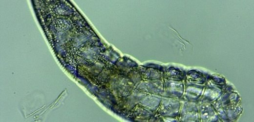 Your face is teeming with mites: 8-legged mites feast on our skin oils