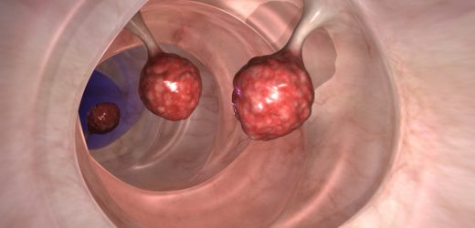 Colonoscopy: With the new Clip can bowel surgery avoid