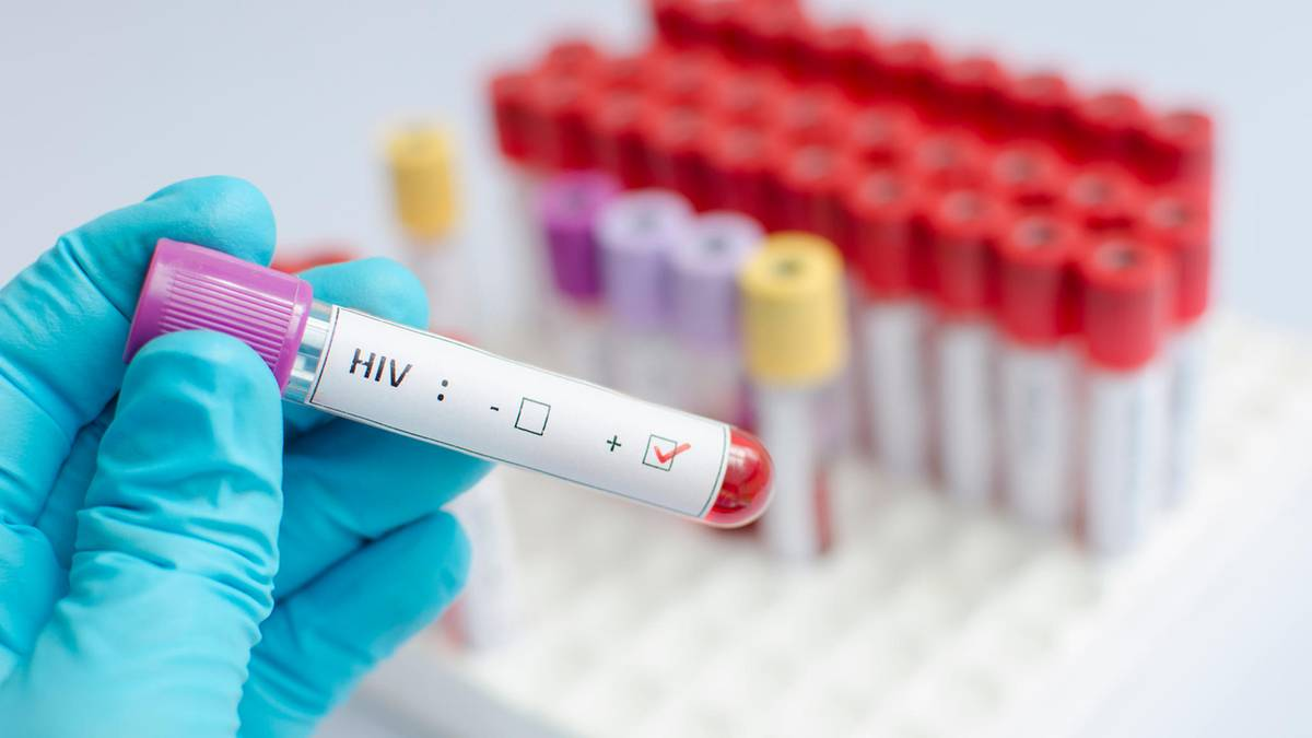 Study confirms: drugs to prevent Transmission of HIV even with unprotected Sex