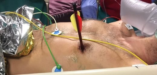 Man in Italy walks into hospital with arrow through heart, somehow survives