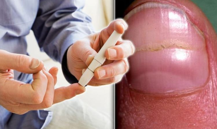 Diabetes type 2 warning: Do your nails look like this? The lines you shouldn't ignore