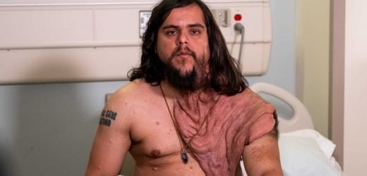 Paraguay Man Bullied for His Massive Tumors Has Surgery to Remove 6 Lbs. of Tissue