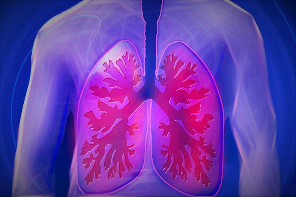 Study identifies potential markers of lung cancer