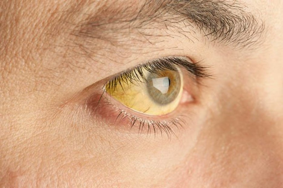 Why are the whites of my eyes yellow? Health expert reveals signs you shouldn't ignore