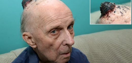 Pensioner dies after 'doctors prescribe paracetamol' for cancer lump