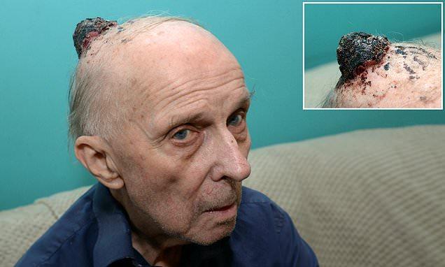 Pensioner dies after 'doctors prescribe paracetamol' for cancer lump