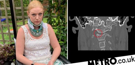 Woman's rare condition means she could be 'internally decapitated' at any time