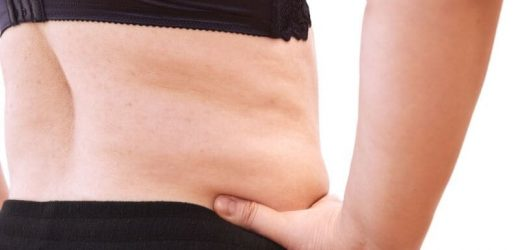 Changes to rectus muscles from pregnancy may impact abdominoplasty