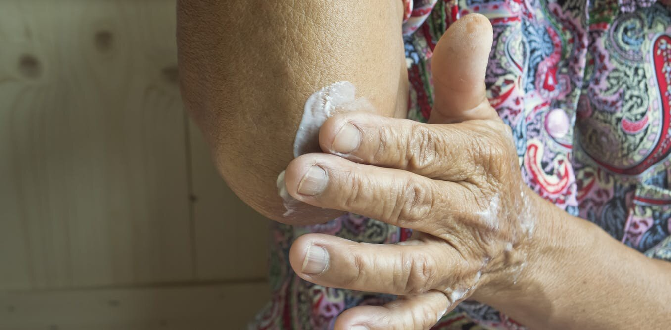 Medical skin creams could be a lethal fire risk when soaked into fabric
