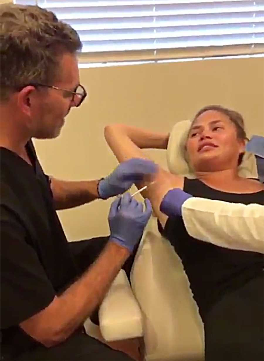 Chrissy Teigen Gets Botox in Her Armpits to Prevent Sweating: 'I Can Wear Silk Again!'
