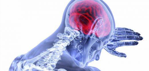 Imaging reveals new results from landmark stem cell trial for stroke
