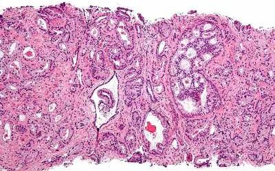 Study finds potential therapeutic target for prostate cancers with PTEN mutation