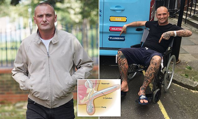 Man who had painful three-day erection gets a pump-controlled penis