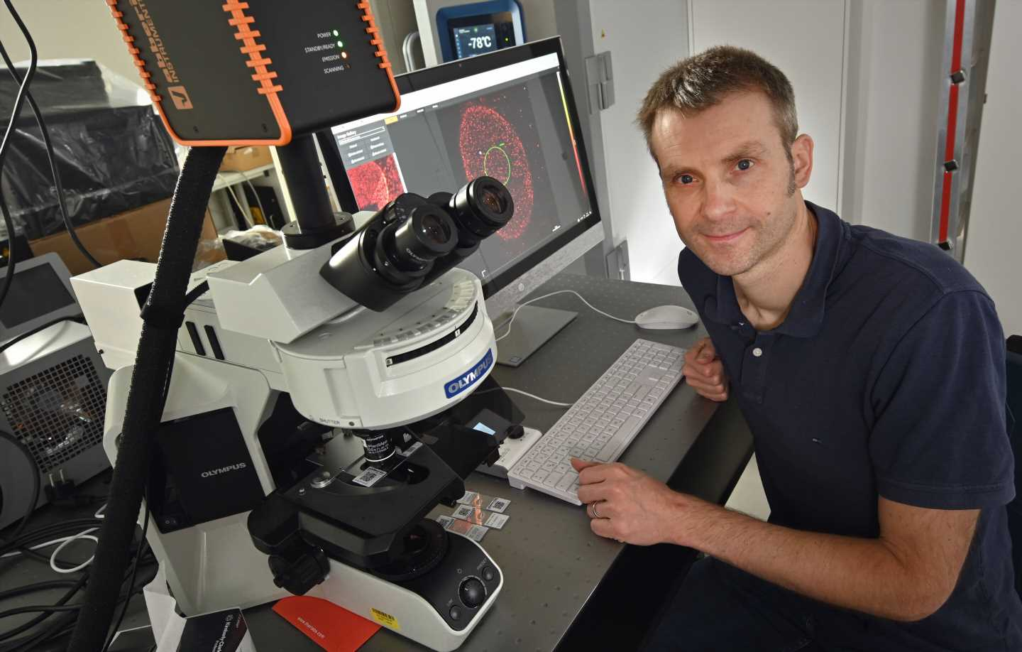 Researchers make visible how AIDS pathogens multiply in the body