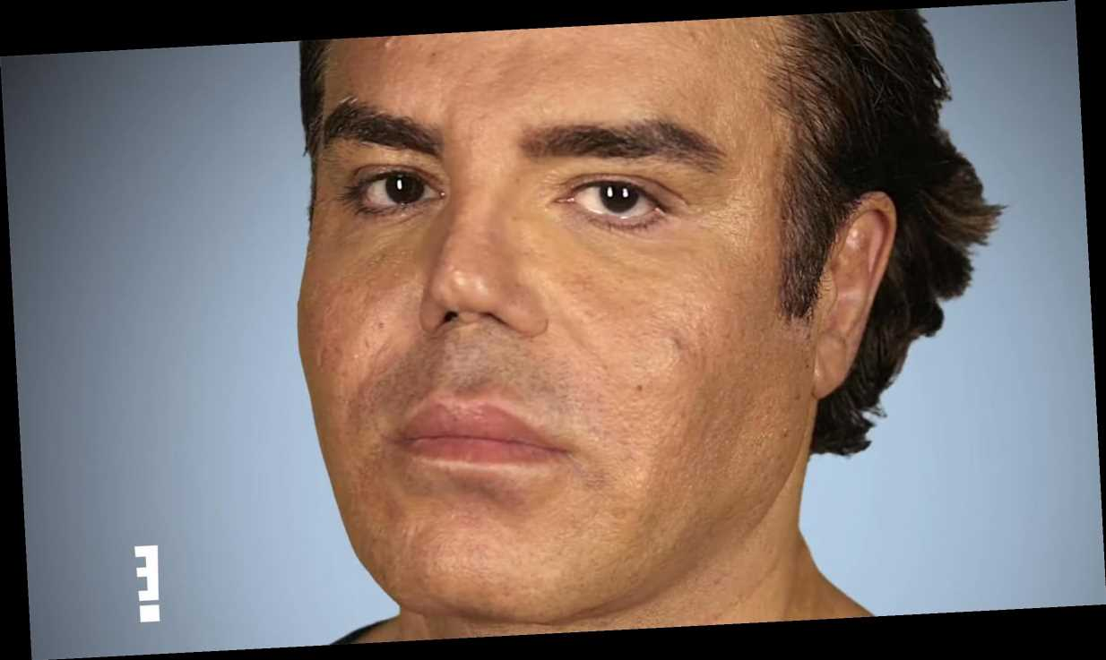 Lebanese Pop Star Seeks Fifth Nose Job from Botched Doctors