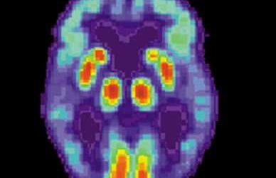 Teams publish in vivo Alzheimer's disease treatment data