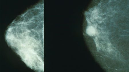 Researchers identify a process responsible for therapeutic resistance in breast cancer