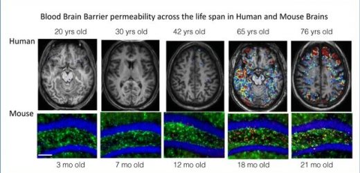 Drugs that quell brain inflammation reverse dementia