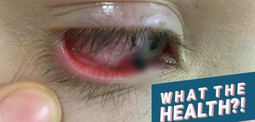 Graphic Photo Shows Girl With Lead Lodged in Her Eye After a Classmate Threw a Pencil at Her