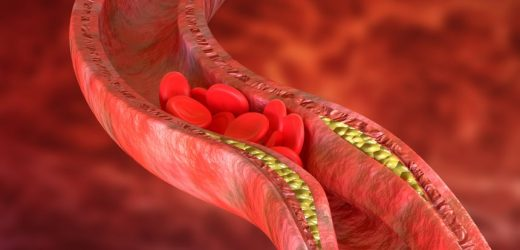 The unknown cholesterol risk