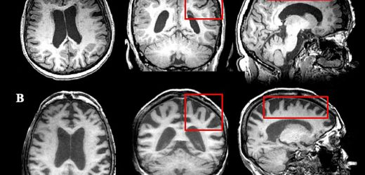 Report: Screen older MS patients for cognitive decline and age-associated neurological conditions