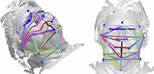 Study suggests 3-D face photos could be a sleep apnea screening tool