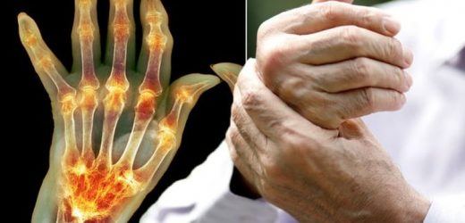 Arthritis pain – the four key warning signs of the joint pain condition