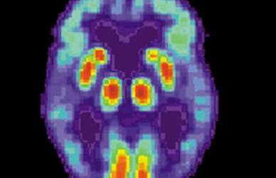Antibody designed to recognize pathogens of Alzheimer's disease