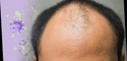 Coronavirus update: Have you suffered hair loss? You could be at risk of severe symptoms