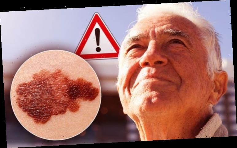 Skin cancer symptoms – three signs of cancer on your skin after the UK heatwave