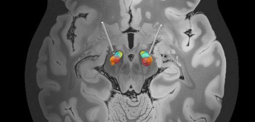 Researchers stimulate improvements in Parkinson's treatment