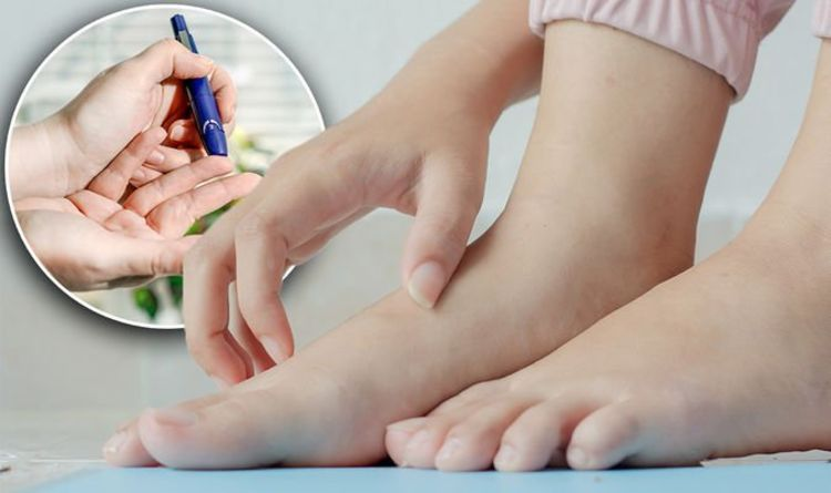 Diabetes type 2: The 'weird' itchy sign you may be ignoring – when to see a doctor