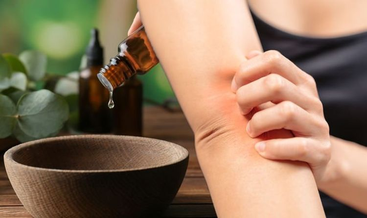 Eczema treatment – £2 essential oil to get rid of dry skin and bacterial dermatitis