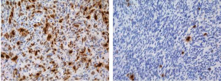 A research team identifies how some gliomas develop chemoresistance