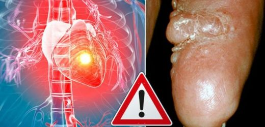 Heart attack warning – the 'waxy lumps' on your skin that may be deadly heart disease