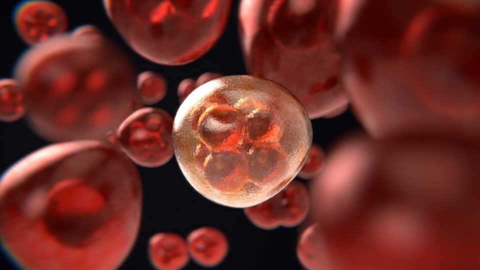 Study discovers potential target for treating aggressive cancer cells